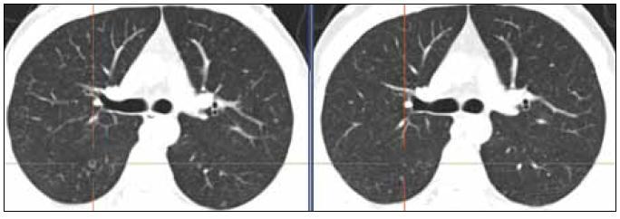 Ilustrativní snímky plicního parenchymu. Před léčbou – snímek vlevo 10/2010 (cystoid), po 4. cyklu léčby – snímek vpravo 1/2011 (jen nenápadná nodularita). Zmenšily se i 2 drobné opacity v levém plicním křídle ve stejné etáži dorzálně a laterálně.