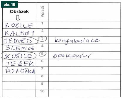 Obr. 1. Ilustrativní ukázka nejdříve písemného pojmenování (A) a poté vybavení (B) názvů stejných obrázků při praktickém použití testu POBAV. Fig. 1. An illustrative example of initial written naming (A) and then immediate recall (B) of the same picture names during an administration of the POBAV test.