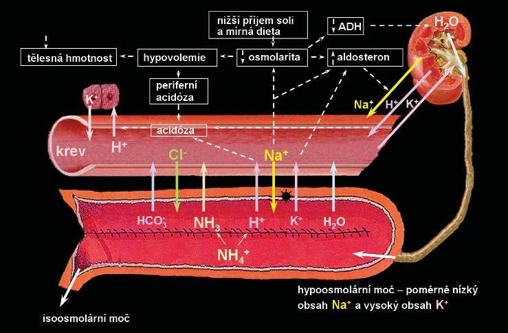 Mechanismus vzniku hyperchloremické acidózy (syndrom úbytku soli) u pacientů s ortotopickou neovezikou z ileálního segmentu. Následkem hypoosmolarické moči, kdy dochází ve střevě díky transportu NaCl do moči k obnově isoosmolárního stavu, se dostává úbytek soli výměnou za Na<sup>+</sup> a H<sup>+</sup> z moči do krevního řečiště. Otištěno se svolením. ADH – antidiuretický hormon, H<sub>2</sub>0 – voda, Na<sup>+</sup>– sodík, H<sup>+</sup>– vodík, K<sup>+</sup>– draslík, Cl<sup>-</sup> – chlor, HCO<sub>3</sub><sup>-</sup> – hydrogenuhličitan sodný, NH3<sup>-</sup> amoniak, NH4<sup>+</sup>– amonium [34].