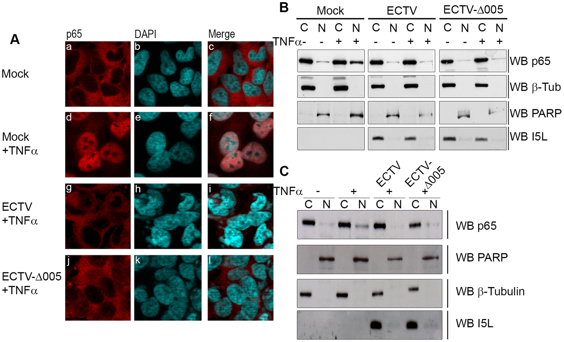 ECTV-Δ005 still inhibits p65 nuclear accumulation.