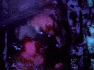 """Peroperační fotografie zachycující dno resekční dutiny se solidní rezidulání porcí jasné purpurově červené fluorescence vlevo dolů, okrsek slabší růžové fluorescence vpravo nahoře reprezentuje """"okraj"""" nádoru."""