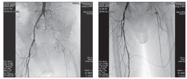 Obr. 1, 2: Angiografický nález pred chirurgickým riešením Fig. 1, 2: DSA before the Surgical Treatment