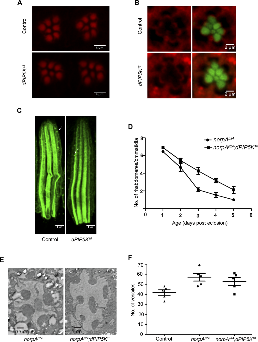 dPIP5K is not required to support cytoskeleton function and dynamin mediated endocytosis in adult photoreceptors.