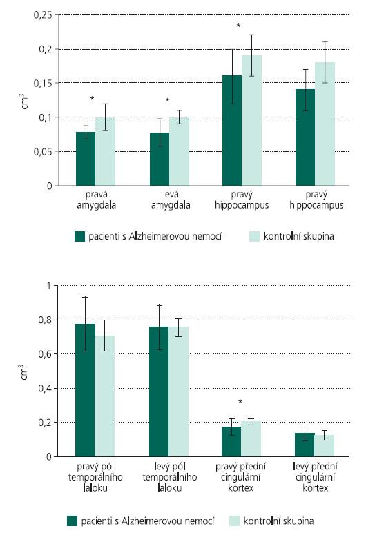 Rozdíly mezi relativními objemy mozkových struktur u nemocných s AN v porovnání s kontrolní skupinou. Statisticky významné rozdíly jsou vyznačeny hvězdičkou (p < 0,01).