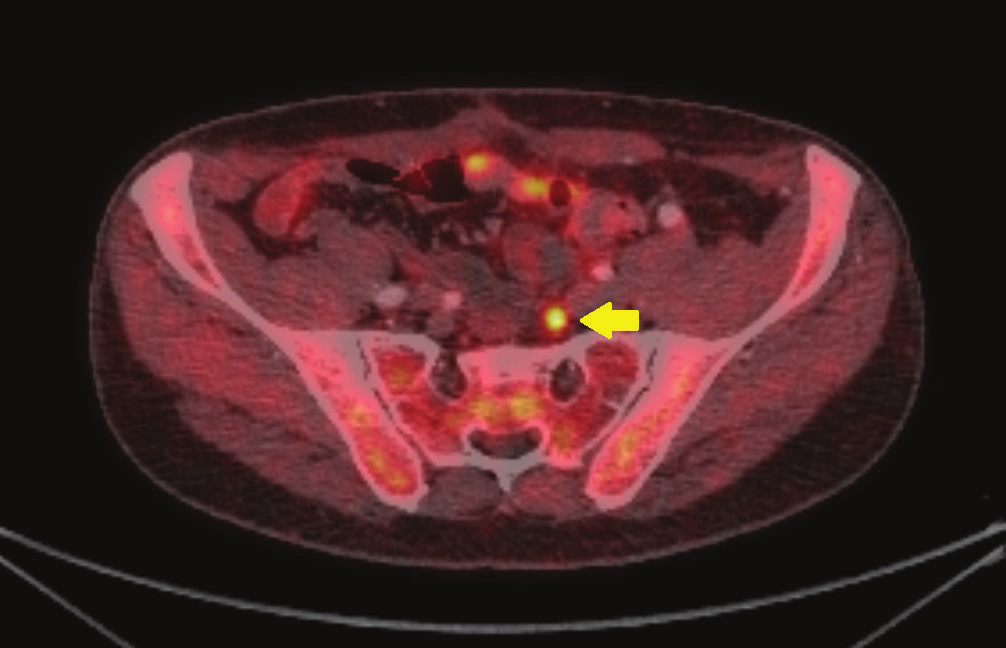 18F-cholin-PET/CT: transaxiální fúze PET/CT obrazu zobrazující vyšší aktivitu radiofarmaka v ilické lymfatické uzlině (žlutá šipka) Fig. 1: 18 F-choline PET/CT: transaxial PET/CT fusion image demonstrating focal tracer uptake in iliac node (yellow arrow)