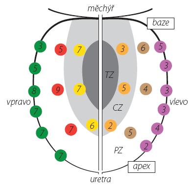 Počet pozitivních vzorků v lokalizacích biopsie u 34 pacientů (celkem 123 vzorků) TZ – tranzitorní zóna, CZ – centrální zóna, PZ – periferní zóna Fig. 2. Number of positive cores in biopsy localizations in 34 patients (a total of 123 cores) TZ – transition zone, CZ – central zone, PZ – peripheral zone