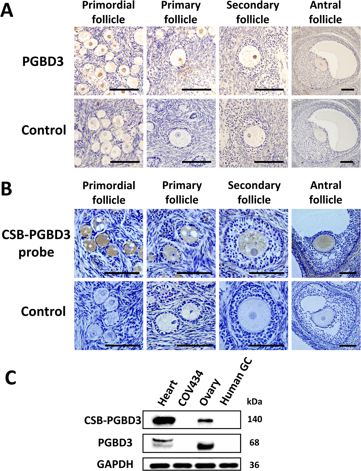 The cellular localization of PGBD3 and CSB-PGBD3.