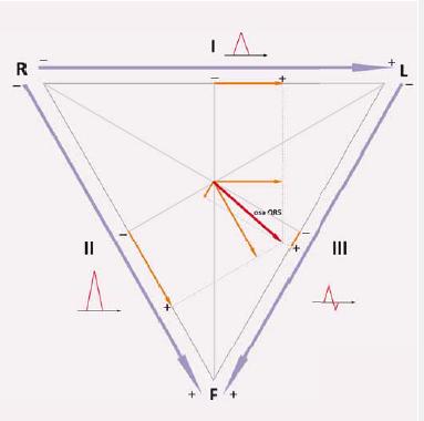 Určení srdeční osy pomocí Einthovenova trojúhelníku.