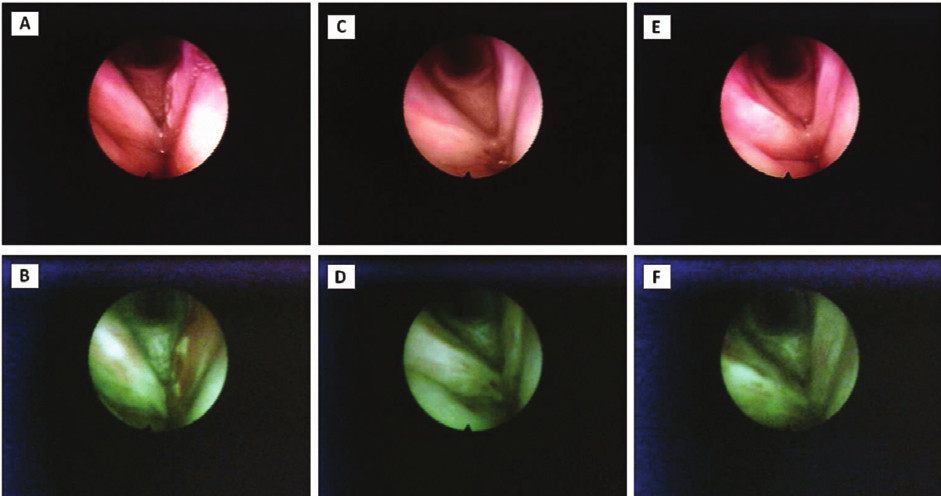 Figs. 4 AF images of the larynx (T3 carcinoma of the left vocal cord before and at the various intervals after the radiotherapy).