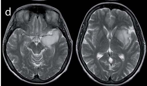 Obr. 1d) Předoperační snímek T2W (infiltrace T pólu, uncu a inzuly).