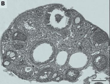 Vliv bisfenolu A na stav ovarií.  Tkáňové řezy ovarií. Kontrolní skupina bez ovlivnění (A) a experimentální po ovlivnění bisfenolem A (B).