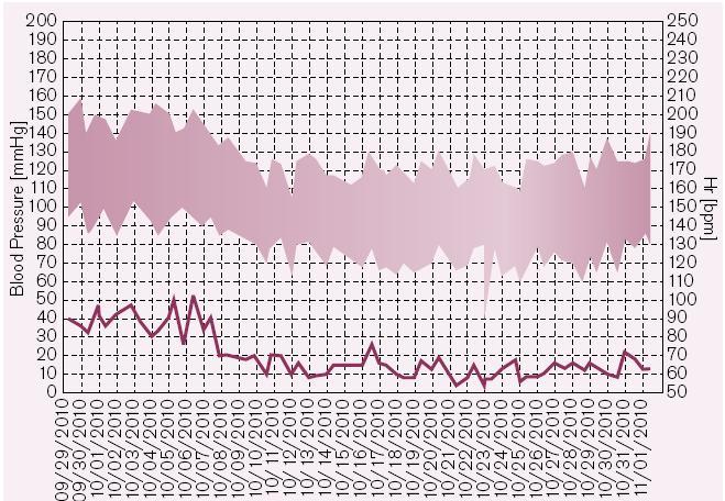 Vývoj hodnot TK a pulzu u pacientky s maskovanou hypertenzí. Před úpravou medikace jsou průměrné domácí hodnoty tlaku 144,7/93,3 mmHg, po úpravě terapie 123,2/73,5 mmHg. Hodnoty TK v ordinaci byly vždy v normě.