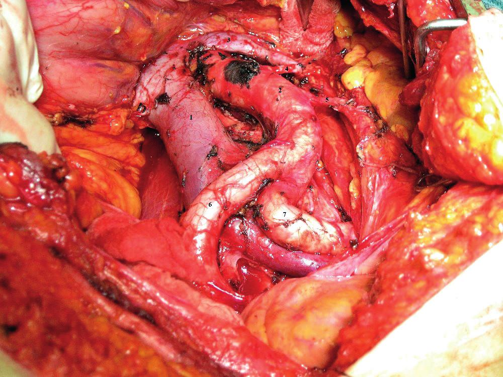 Deviace průběhu magistrálních tepen v souvislosti s aterosklerózou