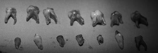 Stav po radikálním ošetření dočasného chrupu – extrahované zuby. Fig. 5. Status after the radical treatment the temporary teeth – extract teeth
