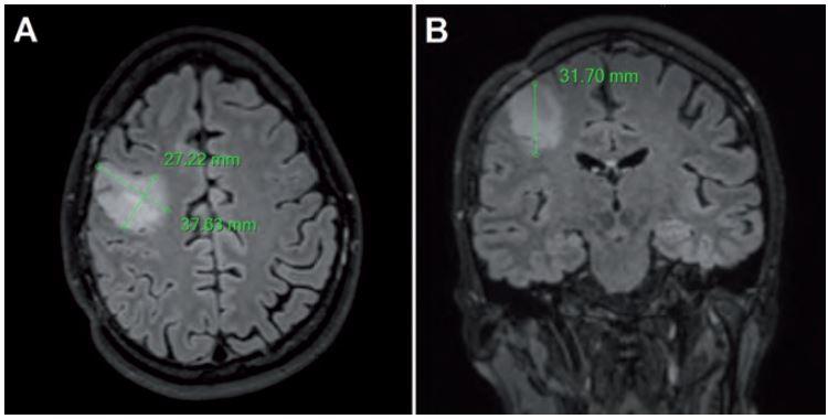 Meranie priemerov tumoru u pacienta s LGG v pravom frontálnom laloku vo FLAIR sekvencii.
