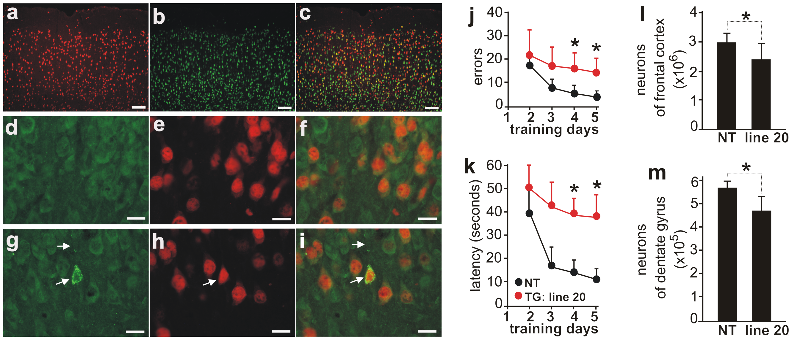 Neuron loss accompanied by ubiquitin aggregation in aged rats overexpressing the normal human <i>fus</i> gene.