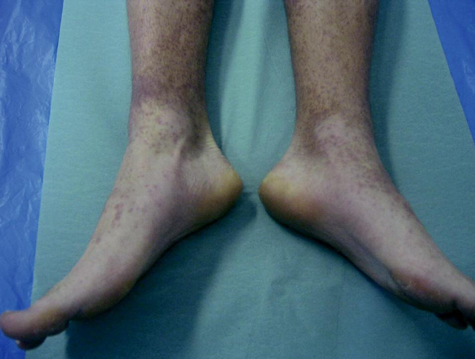 Gloves and socks syndrome, 17-ročný chlapec (parvovírus B19)
