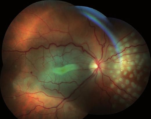 Sumovaný snímek tří barevných fotografií očního pozadí první pooperační den: retinální řečiště je průchodné, makula bledá s bílým pruhem ve foveole a zvýrazněním žlutého zabarvení neuroretiny. V nazálním kvadrantu je patrný žlutý embolus v arteriálním řečišti