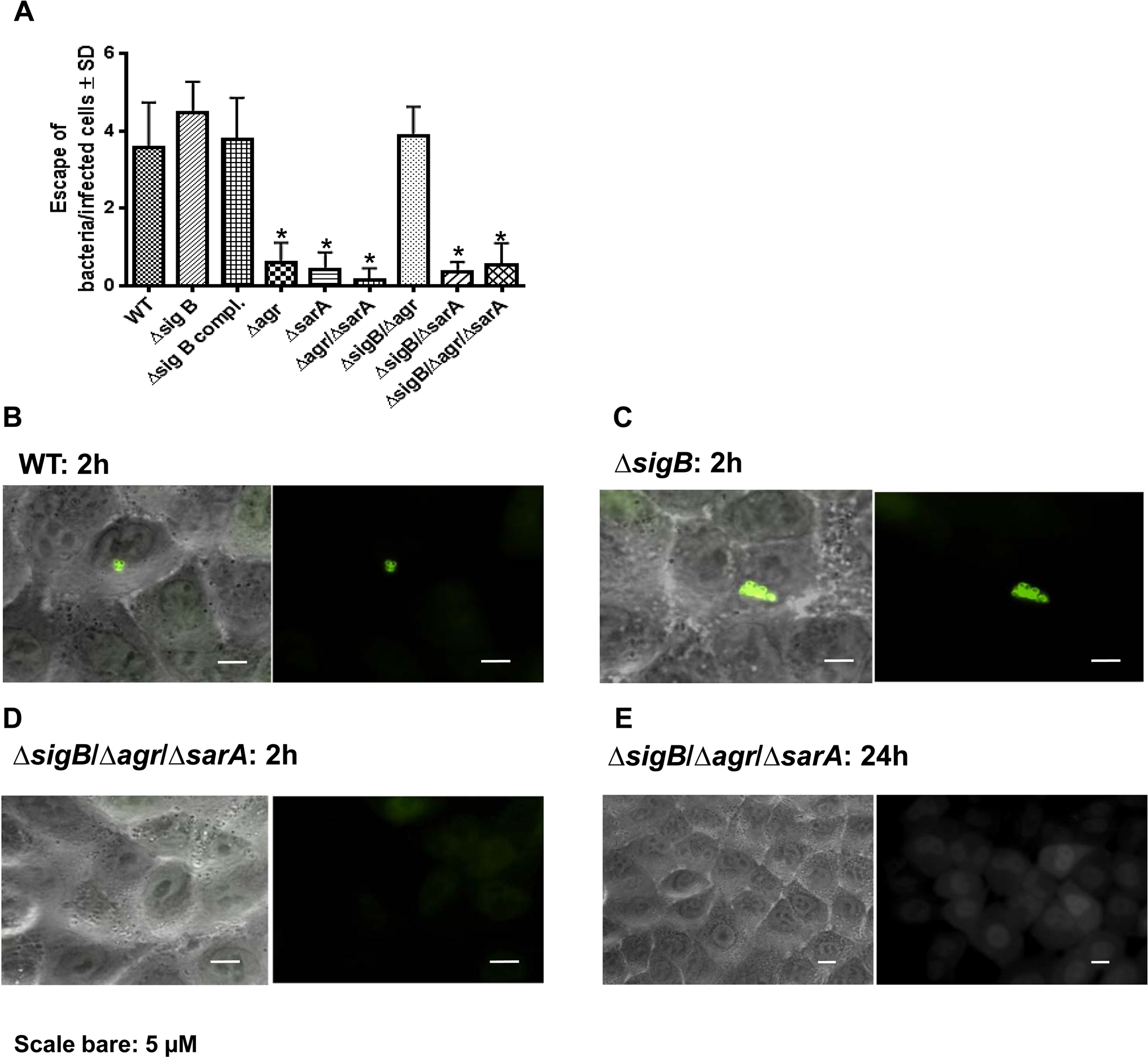 Phagosomal escape of wild-type strain LS1 and corresponding mutants after infection of the host cell construct A549YFP-CWT.