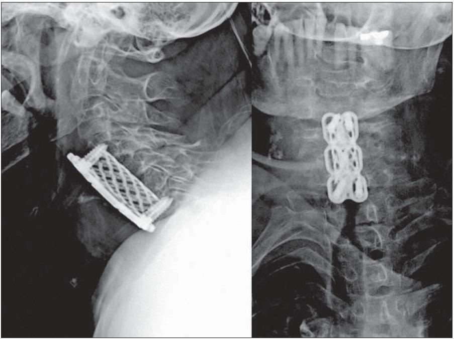 Radiologický nález po první operaci, kde je patrná ztráta ukotvení kraniálních šroubů v těle C4 a společně s tím ventrální dislokace dlahy a koše. Dále můžeme sledovat prohloubení krční lordózy.