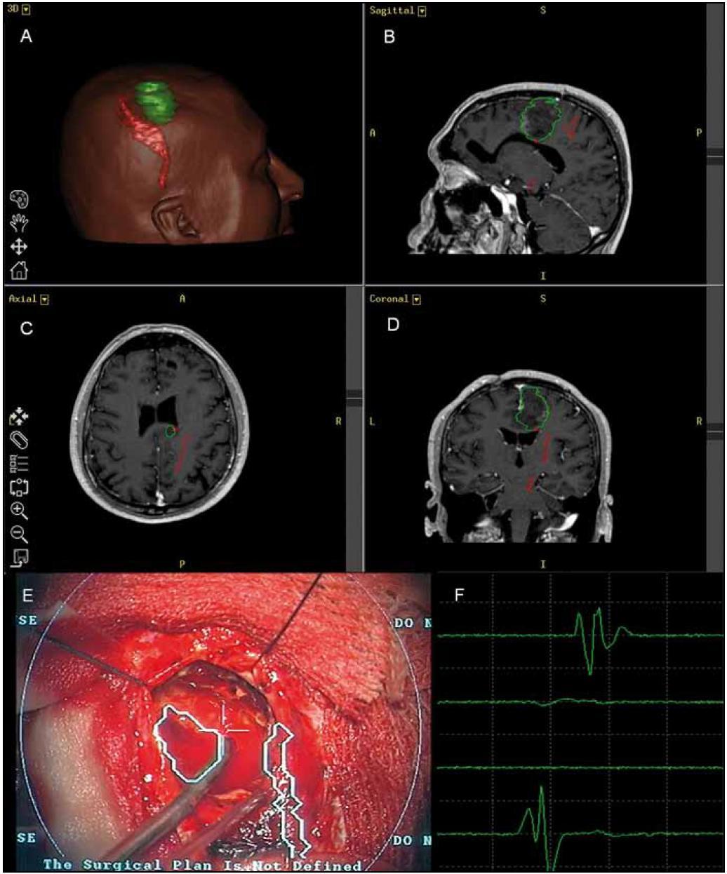 Obr. 3a. 3D model kortikospinální dráhy a její vztah k tumoru, zeleně zobrazen tumor, červeně kortikospinální dráha. b–d) projekce 3D modelu kortikospinální dráhy a tumoru – obrázky z navigace. e) projekce kortikospinální dráhy a tumoru do operačního pole v zorném poli mikroskopu v hloubce odpovídající hloubce fokusu. Ve střední části obrázku patrná stimulační sonda přiložena na plochu resekce do oblasti zobrazení dráhy. f) odpovědi MEP ze svalů při stimulaci (po řadě – svaly tenaru, m. flexor carpi ulnaris, svaly hypotenaru, m. brachioradialis).