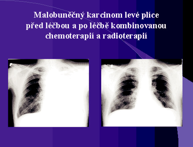 Malobuněčný karcinom levé plíce před léčbou a po léčbě