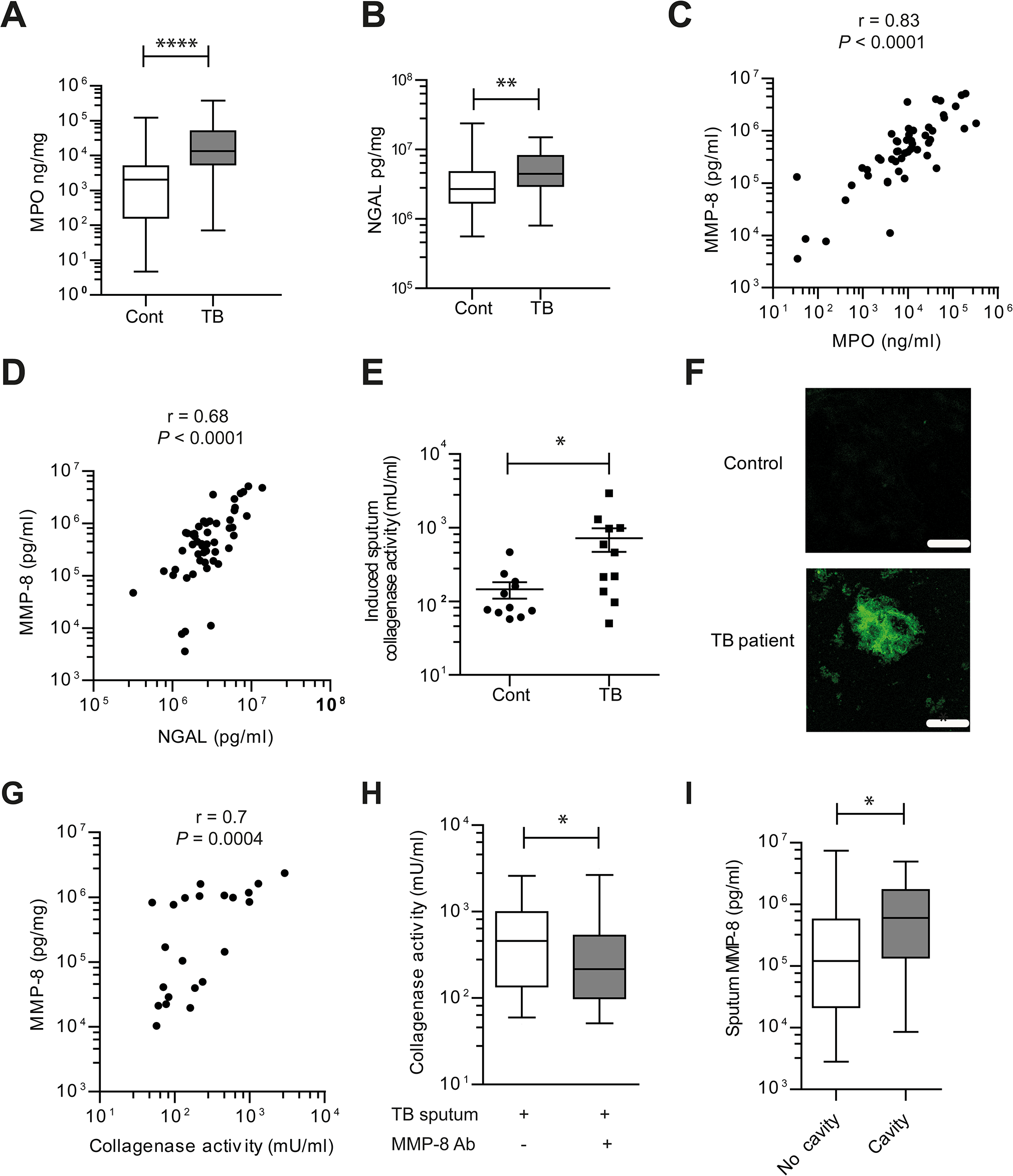 Induced sputum samples of pulmonary TB patients have increased collagenase activity due to neutrophil-derived MMP-8.