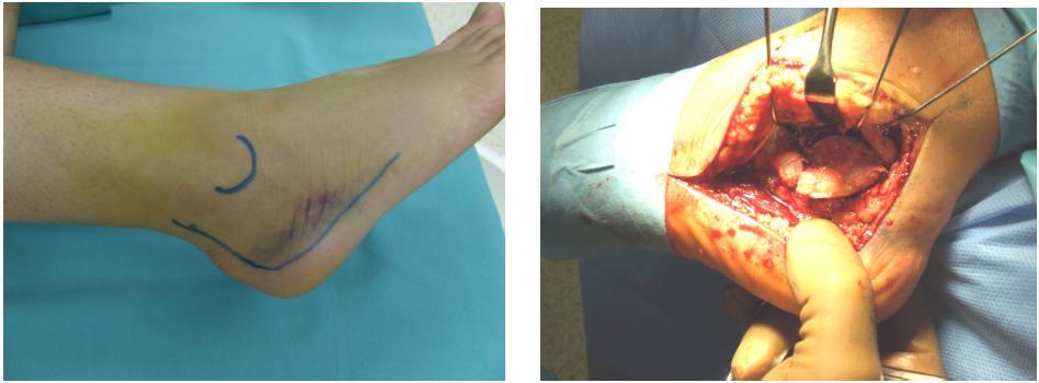 Obr. č. 6 a 7: rozšírený laterálny prístup - vedenie kožného rezu