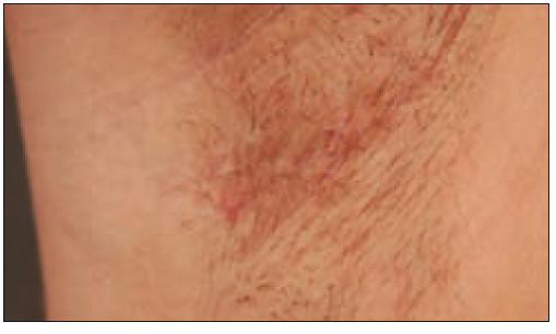 Stejný pacient s kožními projevy onemocnění v zapářkové oblasti.