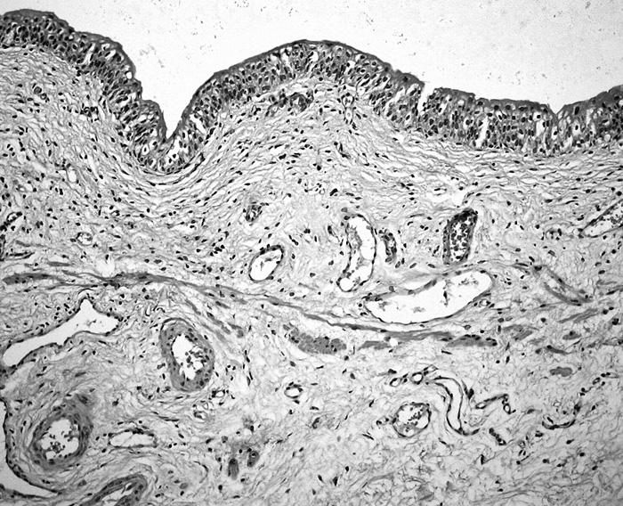 Muscularis mucosae v měchýři obklopená cévami středního kalibru. Sliznice kryta normálním urotelem (HE, 40krát)