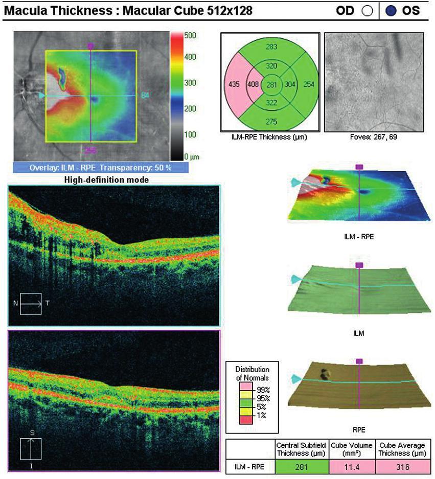 OCT centrální krajiny oka levého. Edém neuroretiny, který pokračuje směrem k terči zrakového nervu.
