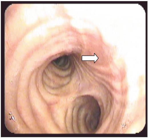 Druhý případ. BSK měsíc od poranění, již patrná jizva (šipka) po zhojené ruptuře, není patrný defekt či prolaps membranozní části trachey