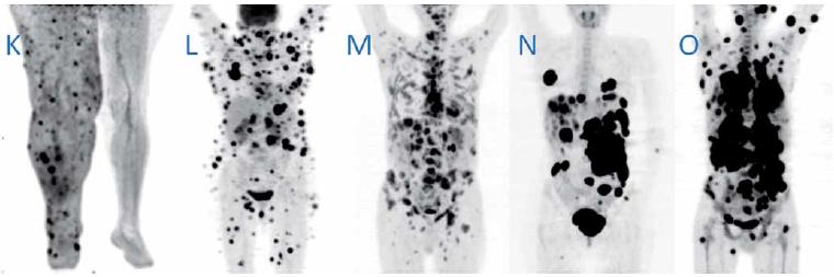 Obr. 1 A–O – pokračování. <sup>18</sup>F-FDG PET a PET/CT vyšetření ve formě PET MIP (max. intensity projections) obrazů, jenž nejlépe dokumentují biodistribuci radiofarmaka. Vzhledem k sumaci akumulace mozku a melanomu oka, je hlava u pacienta F zobrazena v sagitálním řezu.