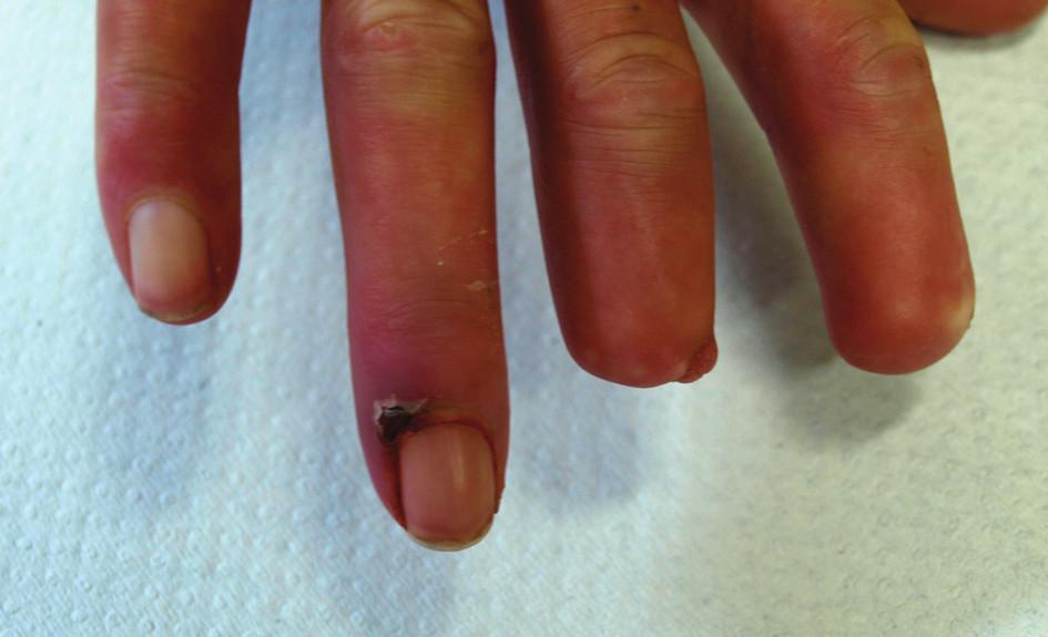 Stav v červenci 2010. Kožní defekt na dorzální straně distálního článku 4. prstu pravé ruky.