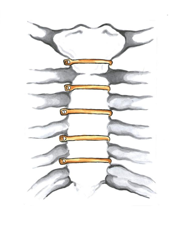 Uzávěr střední sternotomie pomocí sternálních pruhů (Kresba archiv autora) Fig. 8: Median sternotomy closure with sternal bands