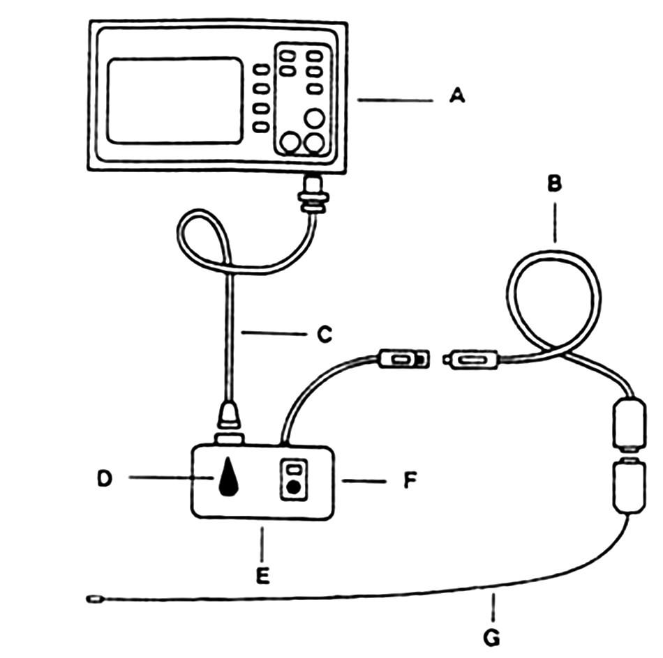 Sestava na měření intrakraniálního tlaku. A) monitor vitálních funkcí, B) propojovací kabel mezi intrakraniálním čidlem a převodníkem C) propojovací kabel mezi monitorem a převodníkem, D)E)F) Převodník s nulovacími a kalibračními ovladači, G) intrakraniální čidlo, které je sterilně dodávané pro jednorázové použití