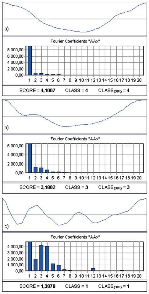 Příklad vlivu síly fonace na kvalitu hlasivkového uzávěru u jednoho pacienta: a) tichá fonace, b) středně silníá fonace, c) silná fonace.