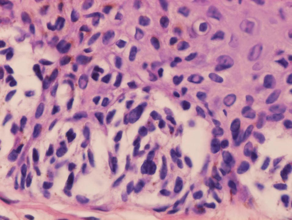 Nepravidelne roztrúsená cytologická atypia v junkčných hniezdach dysplastického névu, jadrá niektorých melanocytov sú zväčšené, hyperchrómne, nepravidelne konturované, iné vyzerajú pomerne pravidelne (HE, 400x).
