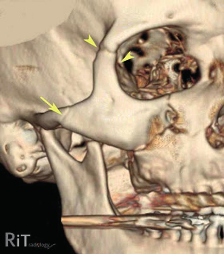 3D CT obraz zlomeniny lícně-čelistního komplexu