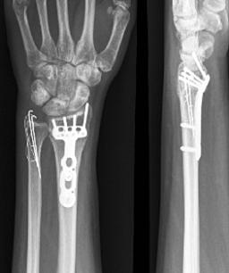 Obr 6b: RTG snímek fract. z obr. 6a po osteosyntéze