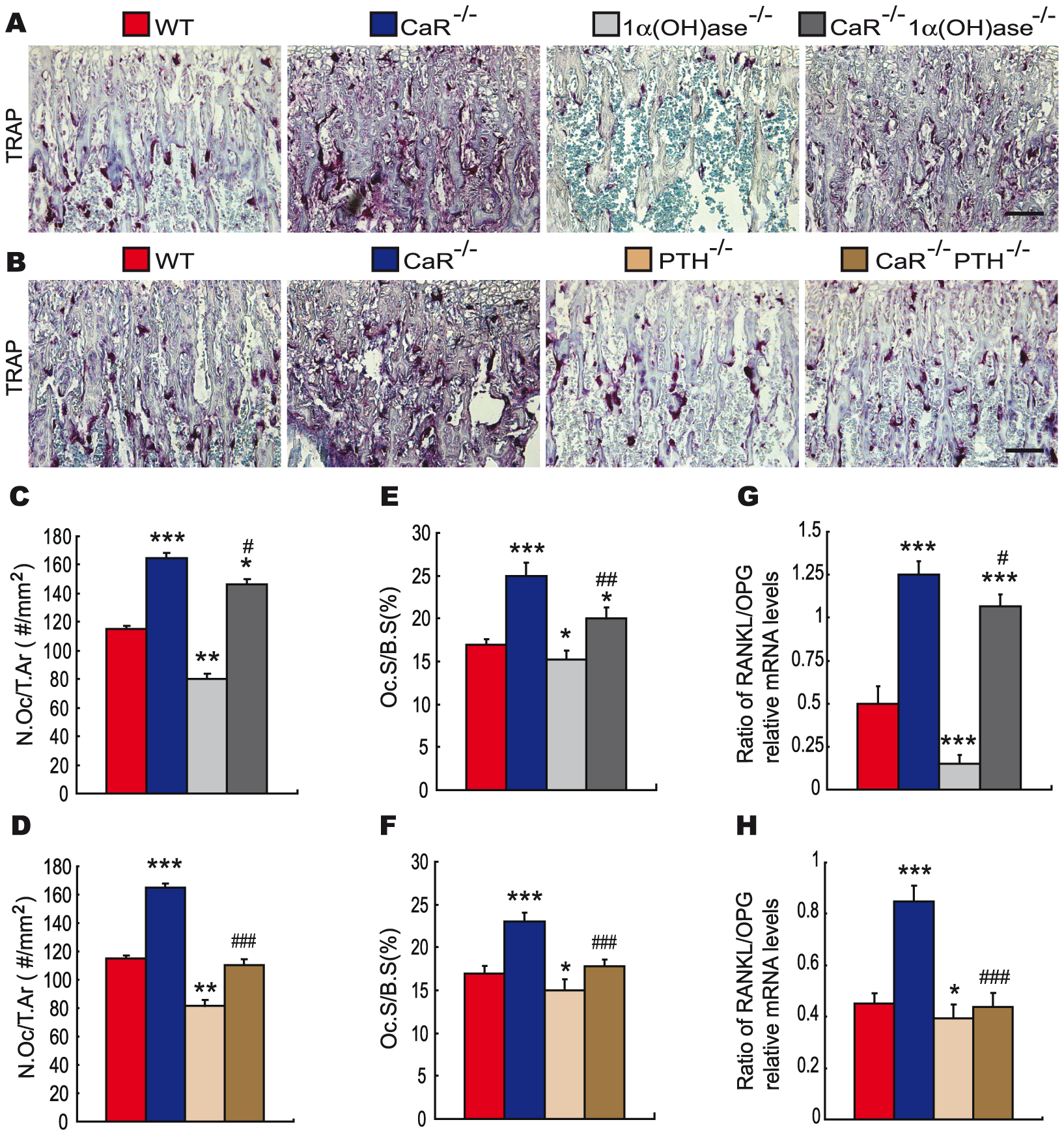 Effects of deletion of 1α(OH)ase or PTH on osteoclastic bone resorption in CaR–deficient mice.