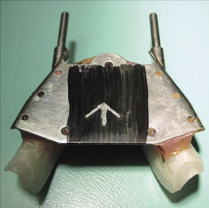 Grafický registrát centrálního vztahu čelistí – šípový hrot neboli gothic arch tracing (foto autoři)