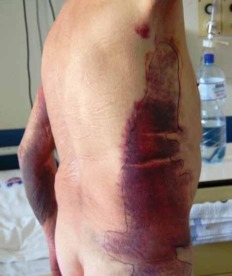Rozsáhlé podkožní krvácení u pacienta se získanou hemofilií A.