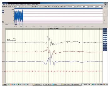 aEEG obraz diskontinuity bez epileptogenní aktivity. Fig. 1. Burst supression – without spike activity.