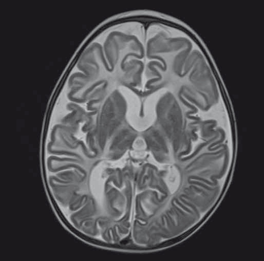 Fig. 2. Bilateral pallidal and bithalamic hypointensity seen on axial T2WI at the age of 2 years 7 months. In addition to basal ganglia hypointensities there is the diff use white matter hyperintensity (hypo/demyelination), cortical and periventricular atrophy.