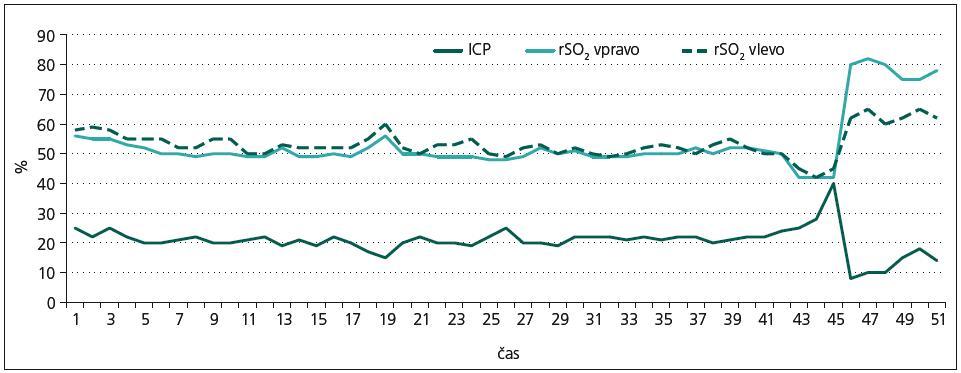 Průběh a vztah nitrolebního tlaku (ICP) při oboustranném měření regionální saturace mozkové tkáně (rSO<sub>2</sub> dx., rSO<sub>2</sub> sin.), sledování prvních 48 hod po inzultu.