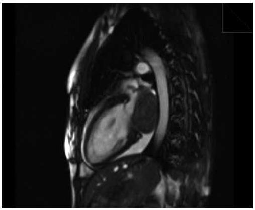 Hypointenzívna tumorózna masa nasadajúca na laterálnu stenu ľavej predsiene, cine trufi sekvencia, 2-komorová projekcia.
