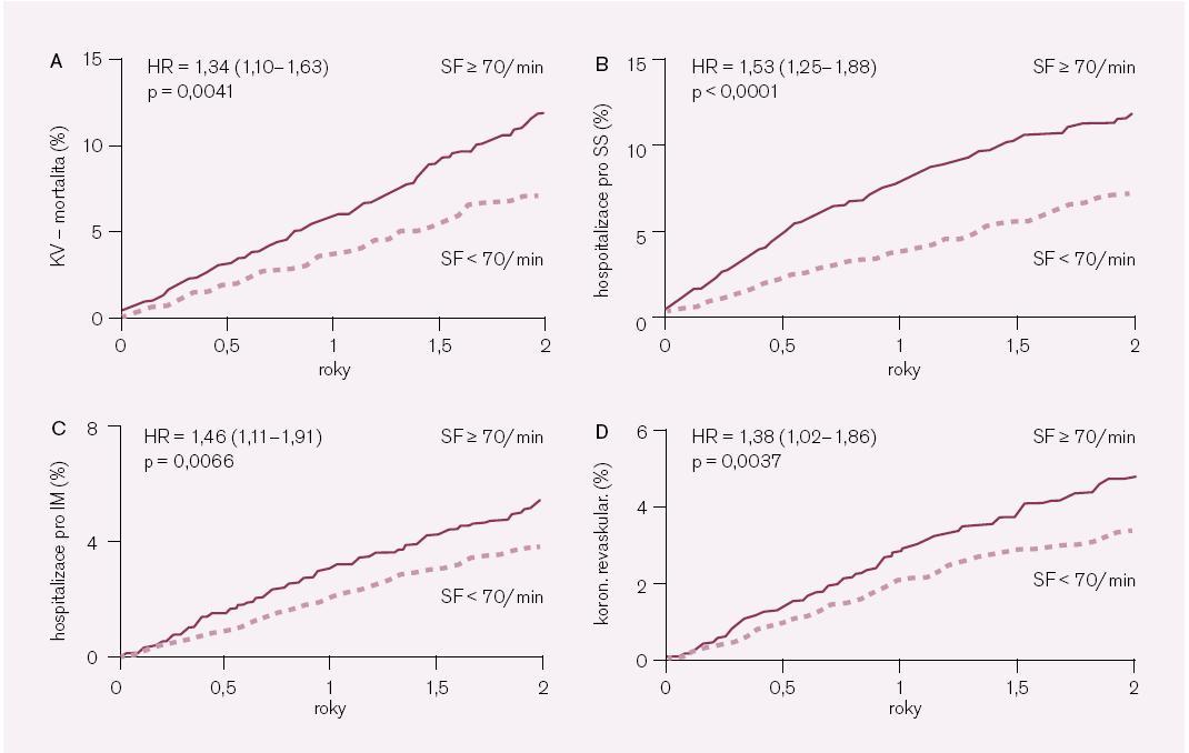 Obr. 2. Prospektivní sledování výskytu kardiovaskulárních příhod v placebové větvi studie BEAUTIFUL (n = 5 438) ukazuje, že srdeční frekvence je prediktorem kardiovaskulárních příhod. Upraveno podle [10]. Panel A – kardiovaskulární mortalita; Panel B – hospitalizace pro srdeční selhání; Panel C – hospitalizace pro infarkt myokardu; Panel D – koronární revaskularizace. KV – kardiovaskulární; SS – srdeční selhání; IM – infarkt myokardu; SF – srdeční frekvence; HR (hazard ratio) – poměr šancí