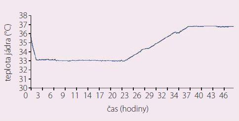 Grafický záznam teploty – rychlé ochlazení, udržování hypotermie, řízený ohřev a následně udržování normotermie.