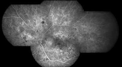 Fluorescenční angiografie neproliferativní diabetické retinopatie
